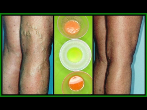 GET RID OF VARICOSE VEINS WITH 3 POWERFUL EFFECTIVE TREATMENTS |100% WORKS | Khichi Beauty