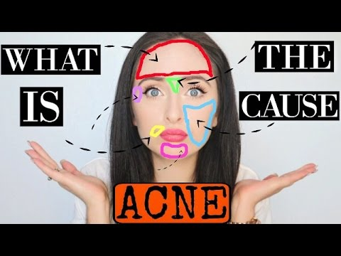 ACNE FACE MAPPING | What Causes Acne? - Ivy Rode