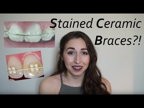 Stains in Ceramic Braces?? Ways to clean them! //Wk.2 Vlog | Braces to Treat TMJ/TMD
