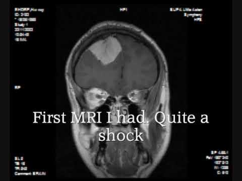 Meningioma Brain Tumor MRI. Cerebrovascular surgery at QE Birmingham UK