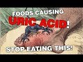 STOP EATING THIS: 10 URIC ACID (GOUT) CAUSING FOODS! (HYPERURICEMIA)