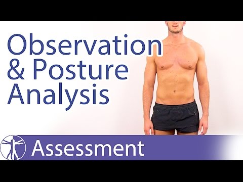 Observation and Posture Analysis