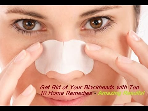 10 Simple Ways to Remove Blackheads At Home - Natural Home Remedies