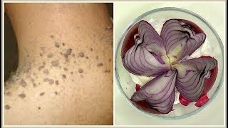 REMOVE SKIN TAGS, MOLES AND WARTS, EFFECTIVE SKIN TAGS REMEDY,  |Khichi Beauty