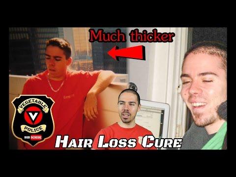 The 4 Keys to Overcoming Hair Loss Forever. Male Pattern Baldness Reversal!