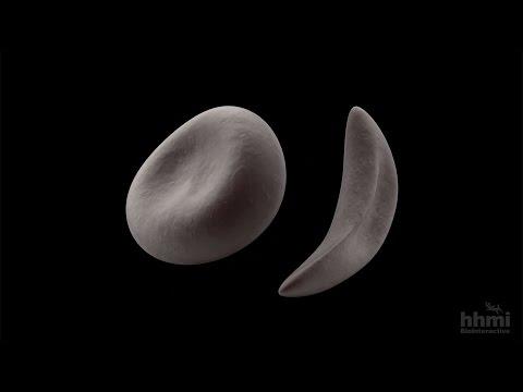 Malaria and Sickle Cell Anemia — HHMI BioInteractive Video