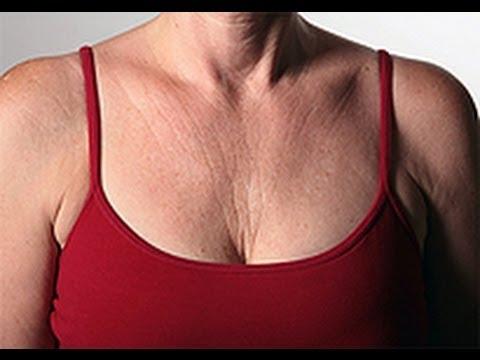 How to Treat Cleavage Wrinkles [DermTV.com Epi #491]