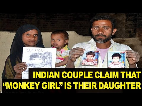 Indian Couple Says Girl 'Raised by Monkeys' is Their Daughter