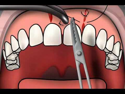 Dental Stitching