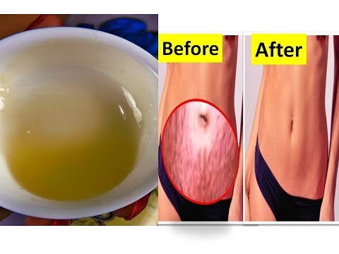 Fast to Get Rid of Stretch Marks