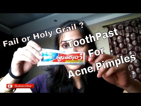 How Toothpaste can help get rid of Acne and Acne Marks | Nidhi Katiyar