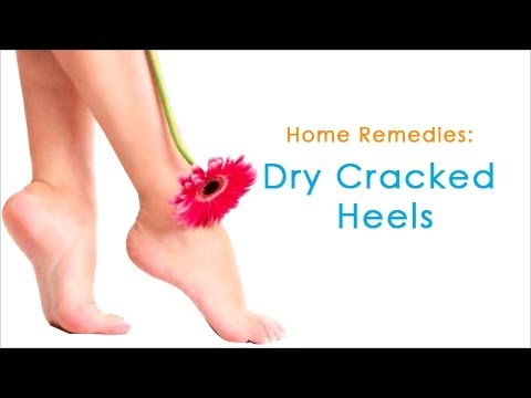 Home Remedies For Dry Cracked Heels | Beauty Tips