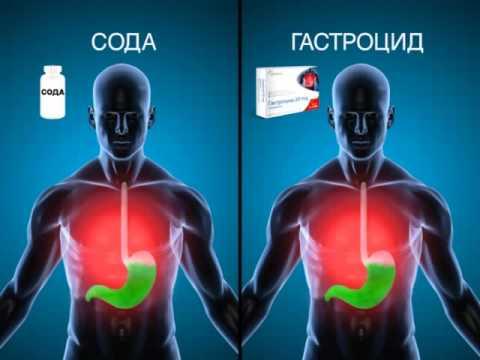 Actavis Gastrocid