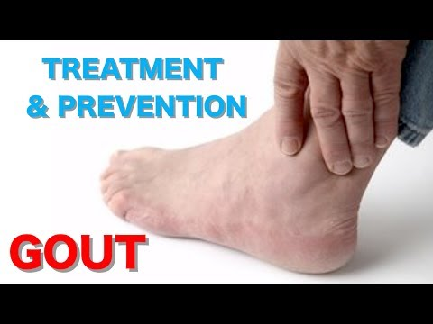 Treatment and Prevention of Gout Home Remedies For Gout Uric Acid Treatment