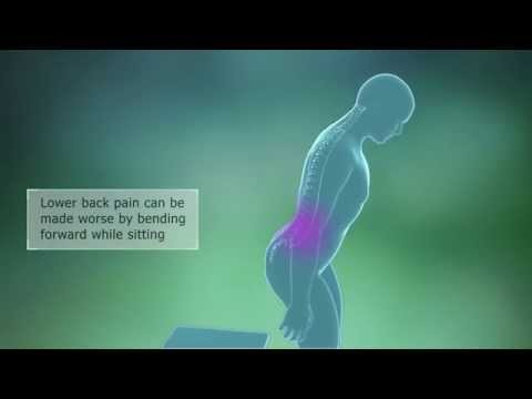 Lumbar Spondylosis Symptoms
