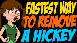 Fastest Way To Remove A Hickey