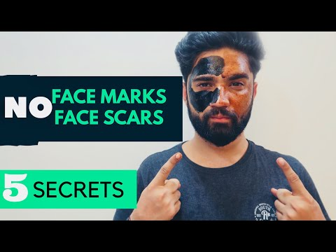 REMOVE FACE MARKS AND SCARS INSTANTLY | GET A CLEAR SKIN EASILY