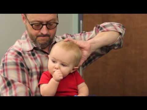 Treatment for Plagiocephaly