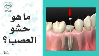 دكتور احمد الشناوي - يوضح زراعة الاسنان الافضل ام التركيب وما هو حشو العصب ؟