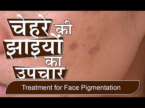 चेहरे की झाइयों का उपचार | Treatment for Face Pigmentation in Hindi