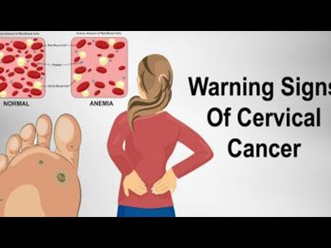 Warning Women: Never Ignore These 7 Signs Of Cervical Cancer!