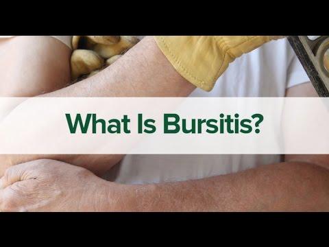 BURSITIS - Patient Education Video
