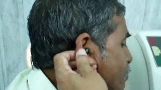 Very Hard Impacted Green Plastic Material And Wax Removed from Ear - Dr Paulose FRCS (ENT)