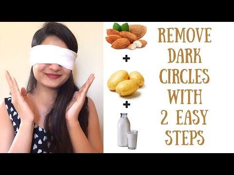 How to Remove Dark Circles Naturally (Hindi) | 100% effective 2 step remedy for dark circles | AVNI