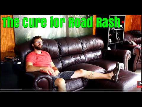 How to treat road rash: Srkcycles.com