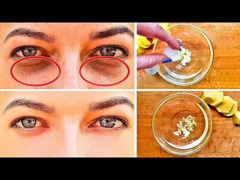 Get Rid of Dark Circles Under the Eyes in Just 3 Days