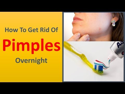 How To Get rid of Pimples Overnight.|Tooth paste Remedy To Get rid of Pimples.