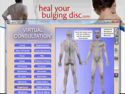 Bulging Disc Symptoms & Herniated Disc Symptoms: What To Know Before You Consult Your Doctor