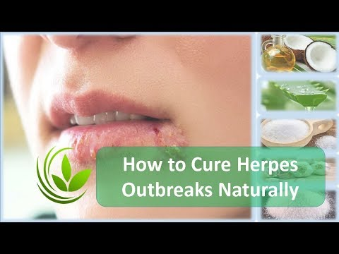 How to Cure Herpes Outbreaks Naturally
