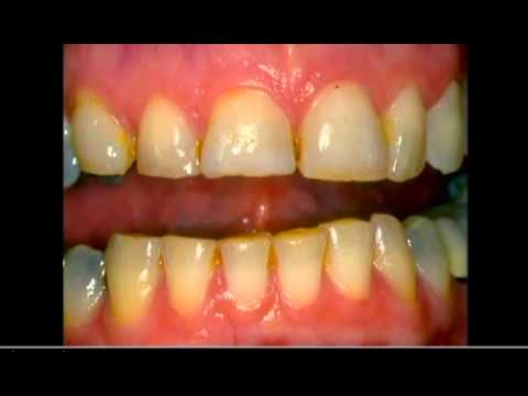 Bonding Cosmetic Dentist  (562) 869-0928