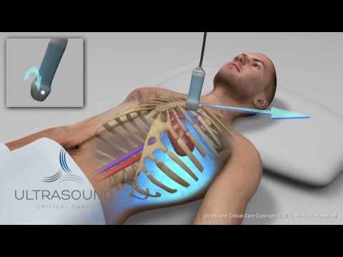 How to obtain: Parasternal Short Axis Ultrasound View - Training and Techniques - ICU