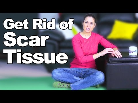 Get Rid of Scar Tissue - Ask Doctor Jo