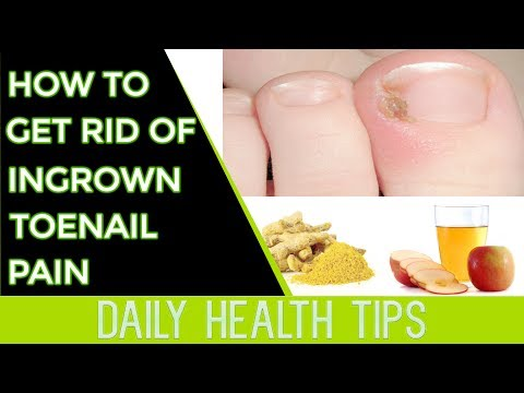 How to Get Rid of Ingrown Toenail Pain - How to Get Rid of Ingrown Toenail Pain Fast