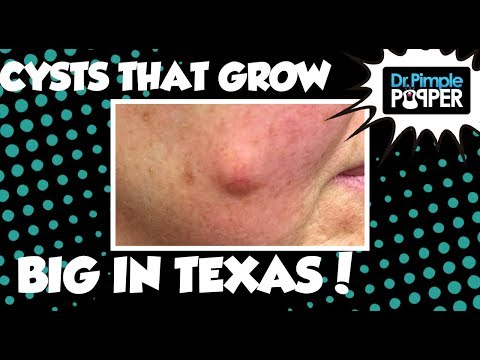 They Grow Cysts BIG in Texas...