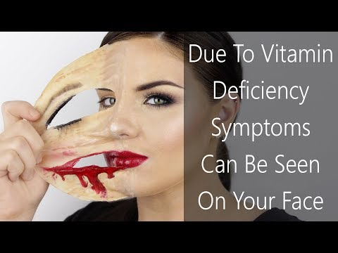 6 SYMPTOMS THAT CAN BE SEEN ON YOUR FACE DUE TO VITAMIN DEFICIENCY!! FACE CARE!! FOOTLOOSE