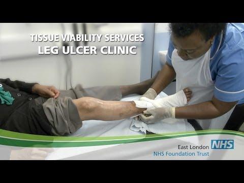 Leg Ulcer Clinic, East London NHS Foundation Trust