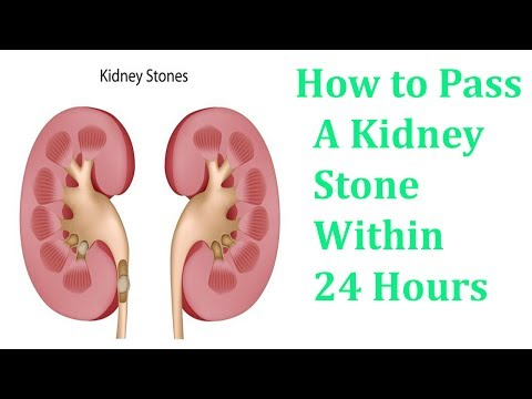 How to Pass A Kidney Stone Within 24 Hours