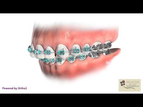 Space Closure - Wellington Village Orthodontics