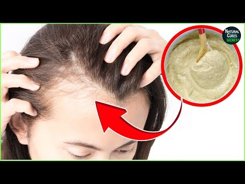 Postpartum Hair Loss Treatment at Home | How To Avoid Hair Loss After Pregnancy
