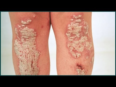 Psoriasis Treatment Guide - Tips To Get Rid of Psoriasis Fast and Naturally