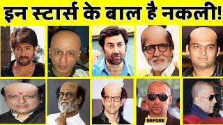 यह बॉलीवुड सितारे हों चुके हैं गंजे, लगाते हैं नकली बाल!   Bollywood Actors fake Hair!