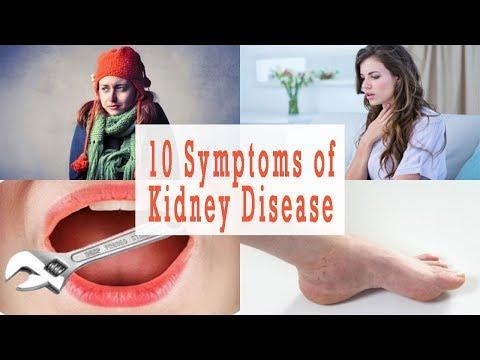 Kidney Pain Symptoms | 10 Symptoms of Kidney Disease