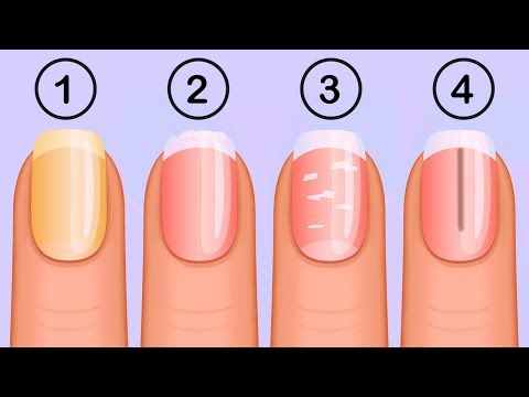 5 Things That Your Nails Say About Your Health
