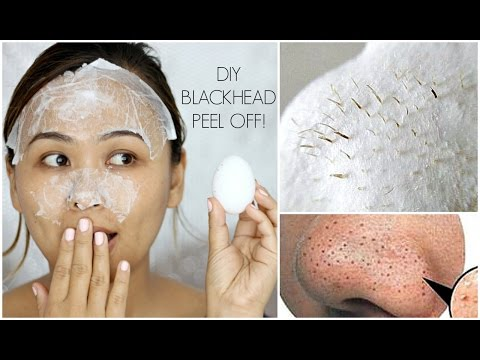 DIY Blackhead Peel Off Mask with an Egg | It Actually WORKS!