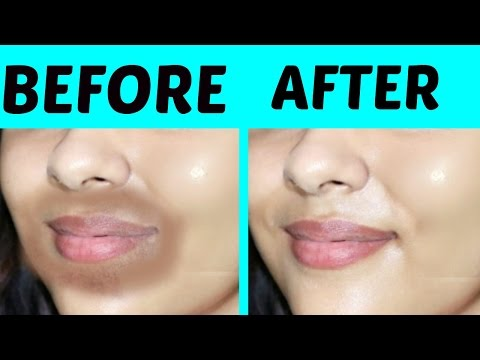REMOVE DARK PATCHES  AROUND MOUTH AREA | 100% EFFECTIVE| TANUTALKS|