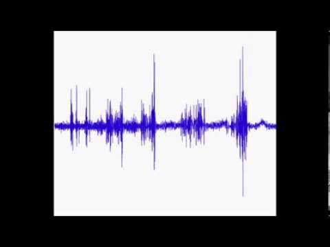 Root-Mean-Square Animated (on EMG data)